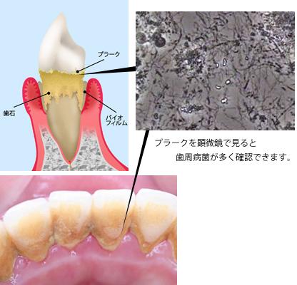 歯槽 違い 歯 周 病 膿 漏